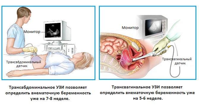 Внематочная беременность на каких сроках определяется