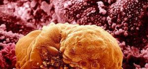 Желтое тело в яичнике – что это такое, когда появляется и исчезает?