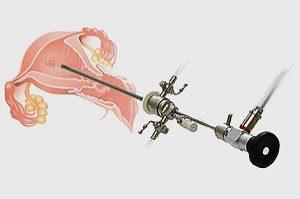 аппарат для гистероскопии