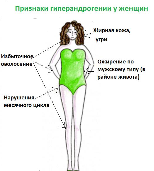 симптомы гиперандрогении