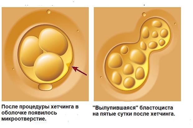 хетчинг эмбриона схема