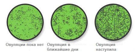 определение овуляции под микроскопом