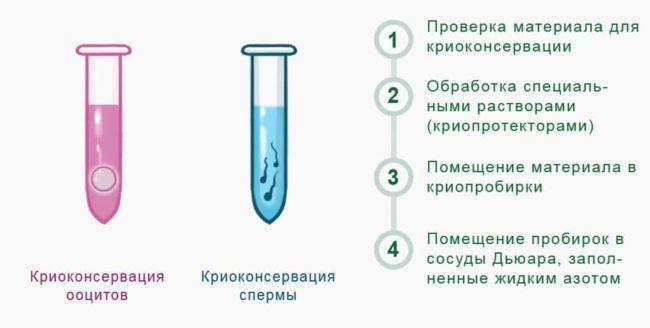 Криоконсервация яйцеклетки и спермы