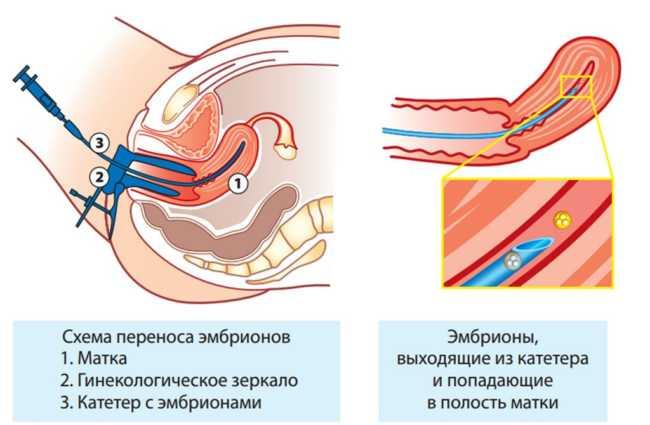 перенос эмбриона в полость матки