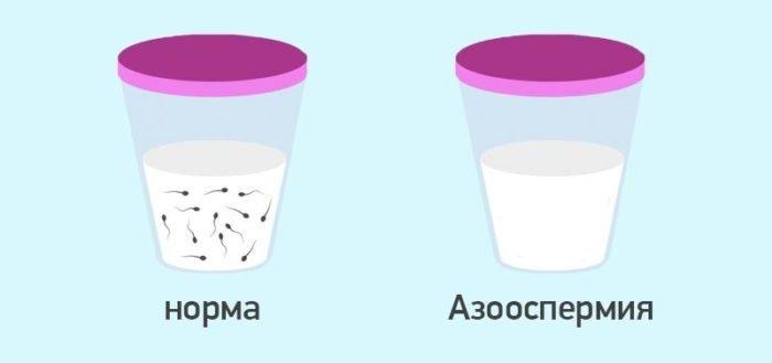 азооспермия и норма