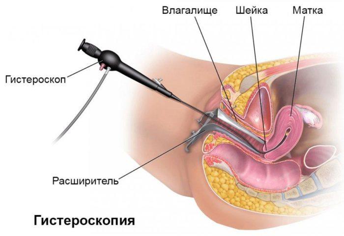 гистероскопия наглядно