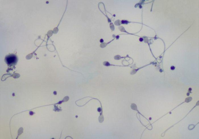 диагноз олигоастенотератозооспермия
