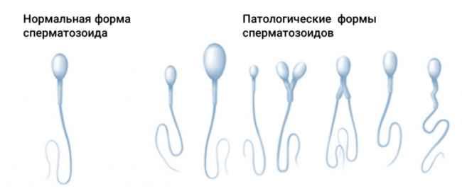 оценка формы сперматазоидов