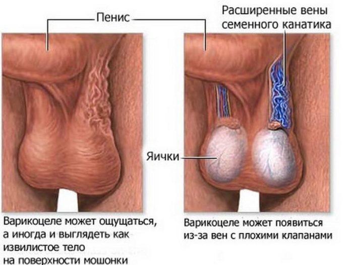 варикоцеле яичка