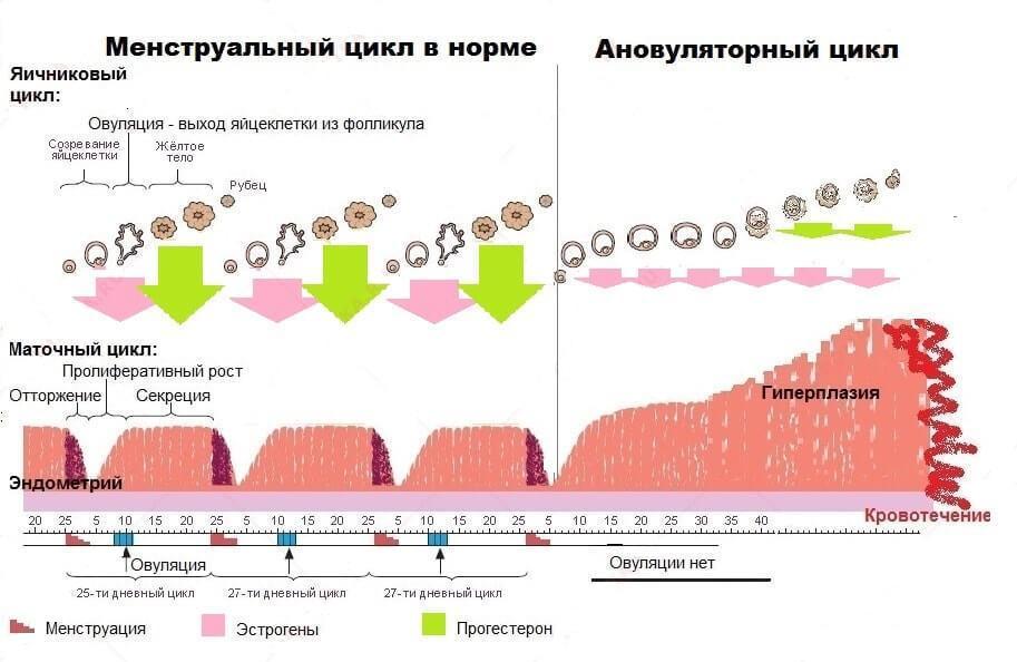 признаки ановуляторного цикла