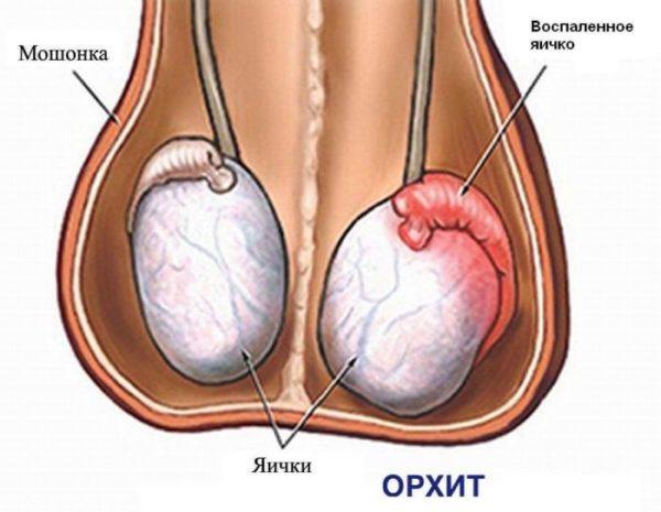 орхит воспаление яичка
