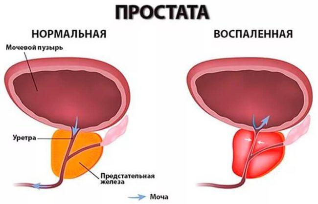 воспаление простаты называется простатит
