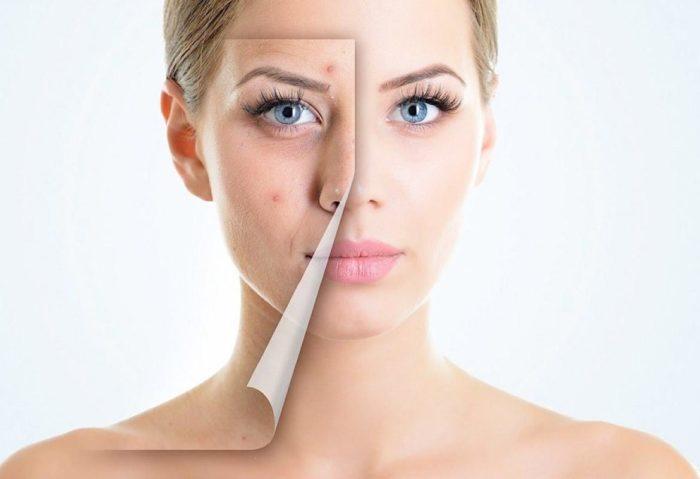влияние овуляции на состояние кожи