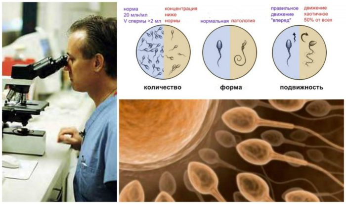 спермограмма и подготовка к ней