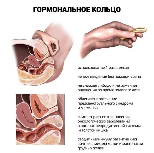 гормональные противозачаточные кольца установка